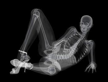 Рентгеновский эротический календарь
